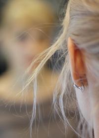 Пластические операции на ушах